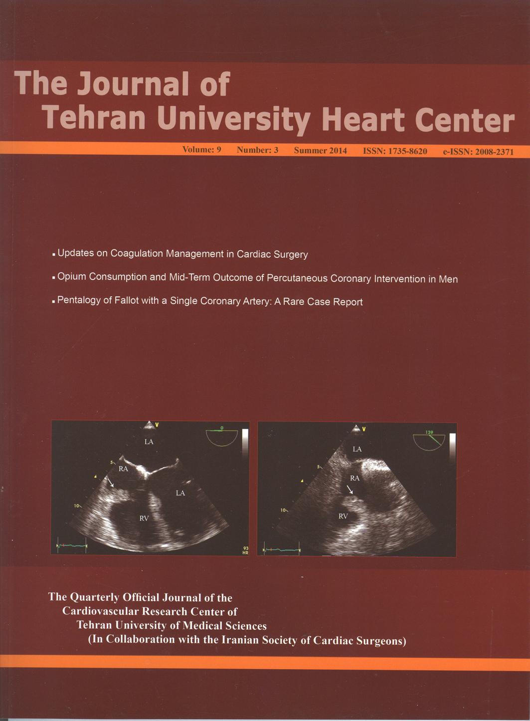 management of coronary artery disease pdf