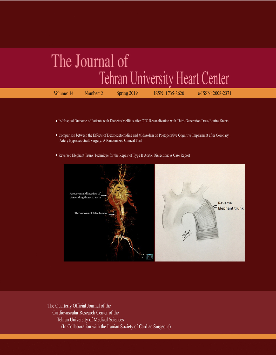 Prevalence and Risk Factors of Hypoxemia after Coronary